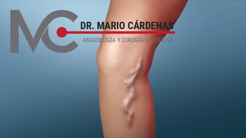 Cirugia - Operacion de varices en Monterrey