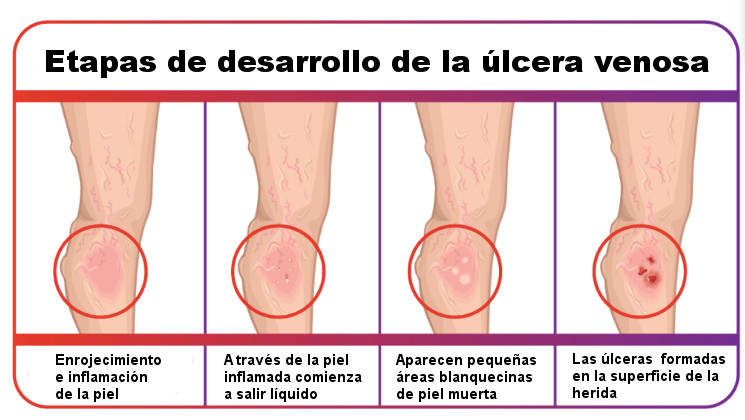 etapas del desarrollo de ulceras varicosas