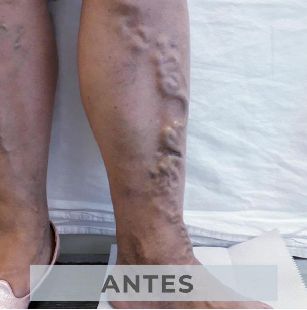 Clínica de várices en Monterrey - Antes