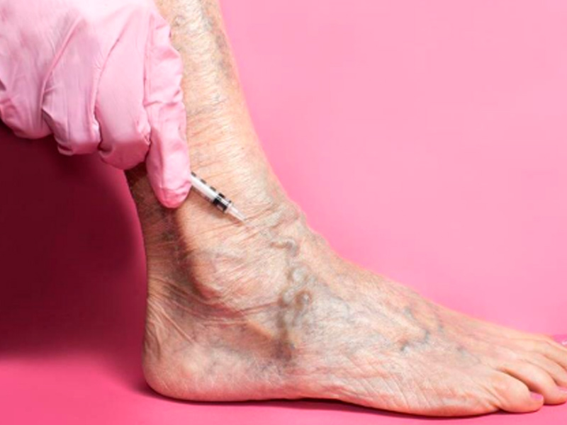 Dr. Mario Cárdenas - Escleroterapia