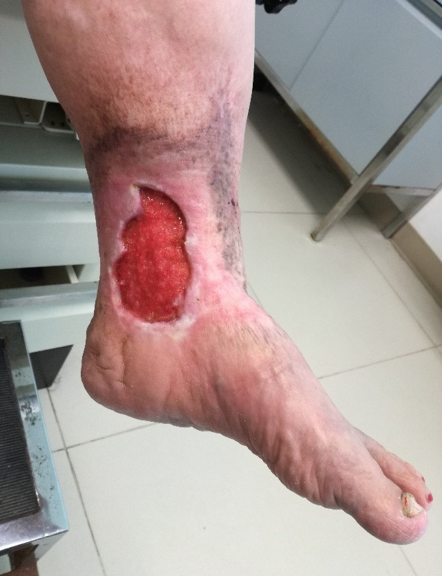 Ulcera Varicosa - Clínica de várices en Monterrey